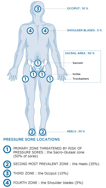 syst'am - our solutions to prevent pressure sores foot diagram pressure ulcer